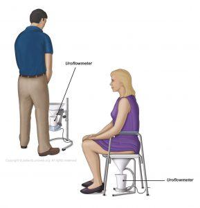 Abb. 2: Ein übliches Uroflowmeter für Männer und Frauen.