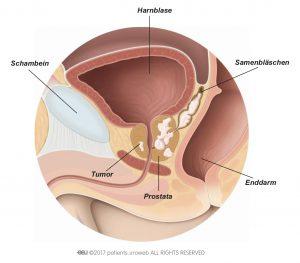 Abb. 1: Ein T3-Prostatatumor, der sich auf die Samenbläschen ausgebreitet hat.