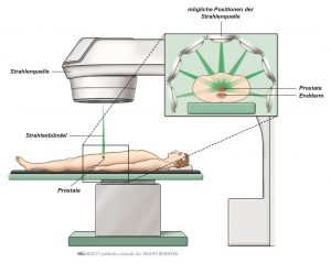 Abb. 1: Externe Strahlentherapie zur Zerstörung von Krebszellen.