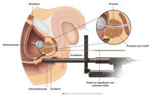 Abb. 2: Bei der Brachytherapie wird eine Strahlenquelle direkt in die Prostata eingesetzt.