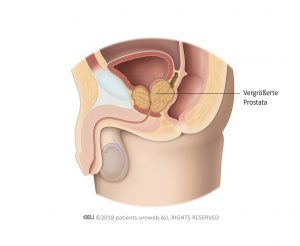 Abb. 2: Eine vergrößerte Prostata, die auf dieHarnröhre und Harnblase drückt.