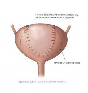 Abb. 4: Harnblasenoperation zur Vergrößerung der Blasenkapazität.