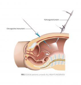Abb. 2: Bei der laparoskopischen Operation führt der Chirurg seine Instrumente durch kleine Einschnitte in der Bauchdecke ein.