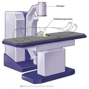 Abb. 2: Eine gängige Variante eines Stoßwellengenerators für die SWL.