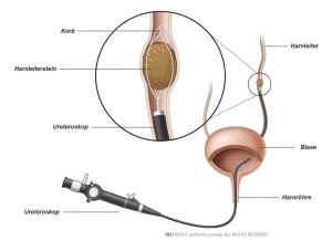 Abb. 1: das Ureteroskop.