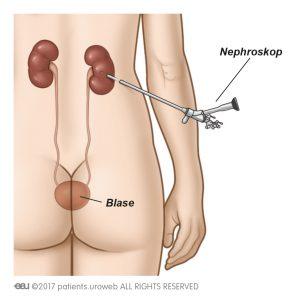 Abb. 1a: Mithilfe eines Nephroskops werden die Steine direkt aus der Niere entfernt.