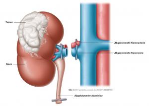 Abb. 1: Der Tumor wird mit der gesamten Niere entfernt.