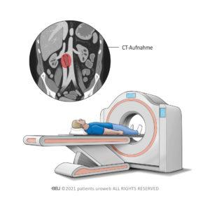 CT-Aufnahme