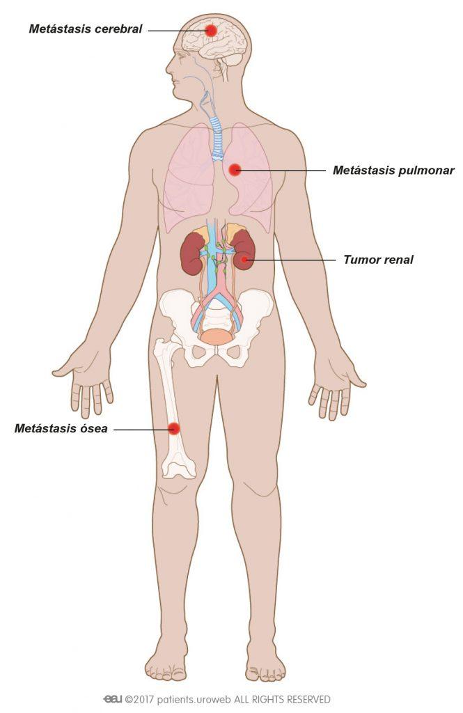 Fig. 1: Cáncer renal metastásico puede diseminarse a los pulmones, huesos o el cerebro.