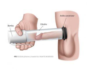Fig. 1: Un tipo común de dispositivo de vacio para la erección (VED).