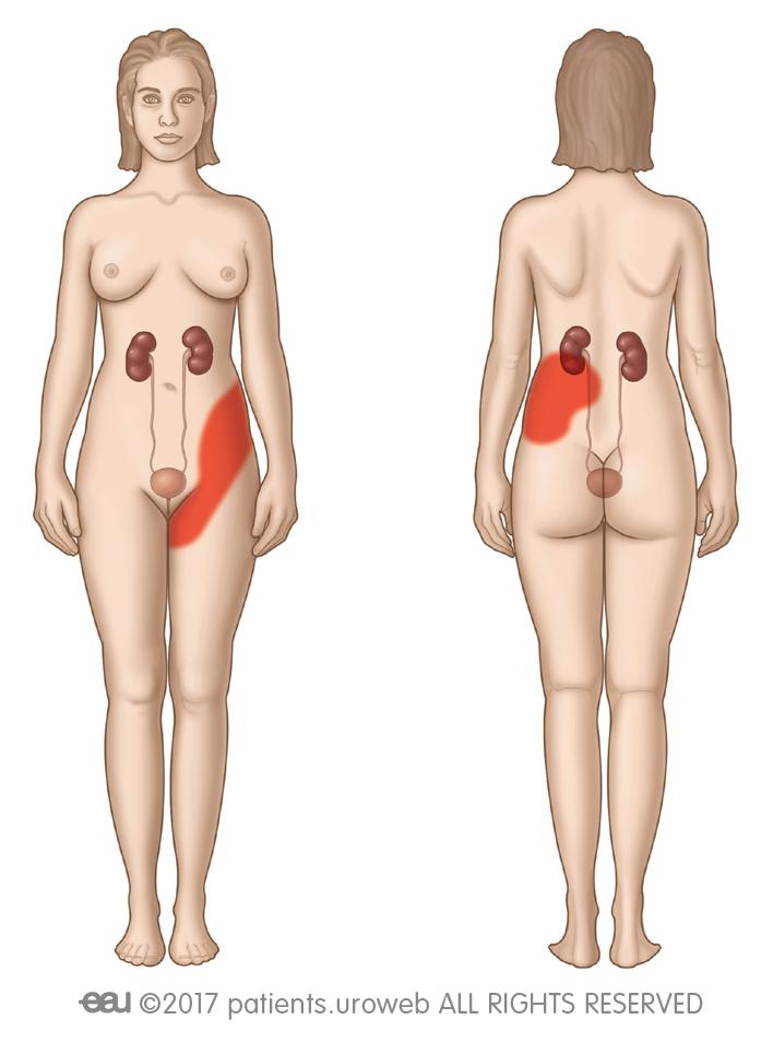 Fig. 2: Área de posible dolor del cólico renal.