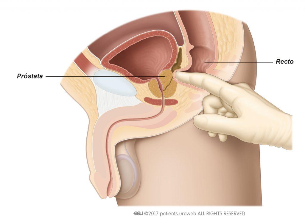 forma de próstata