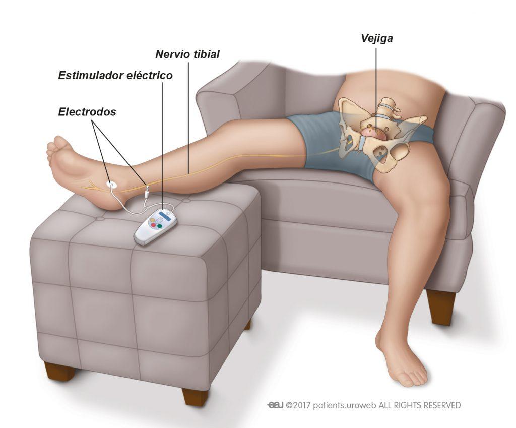 estimulación de extirpación de próstata del nervio tibial percutáneo