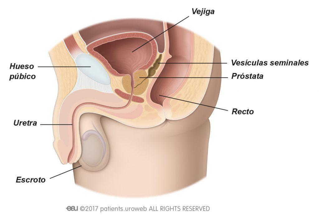 Crecimiento benigno de próstata - PI ES