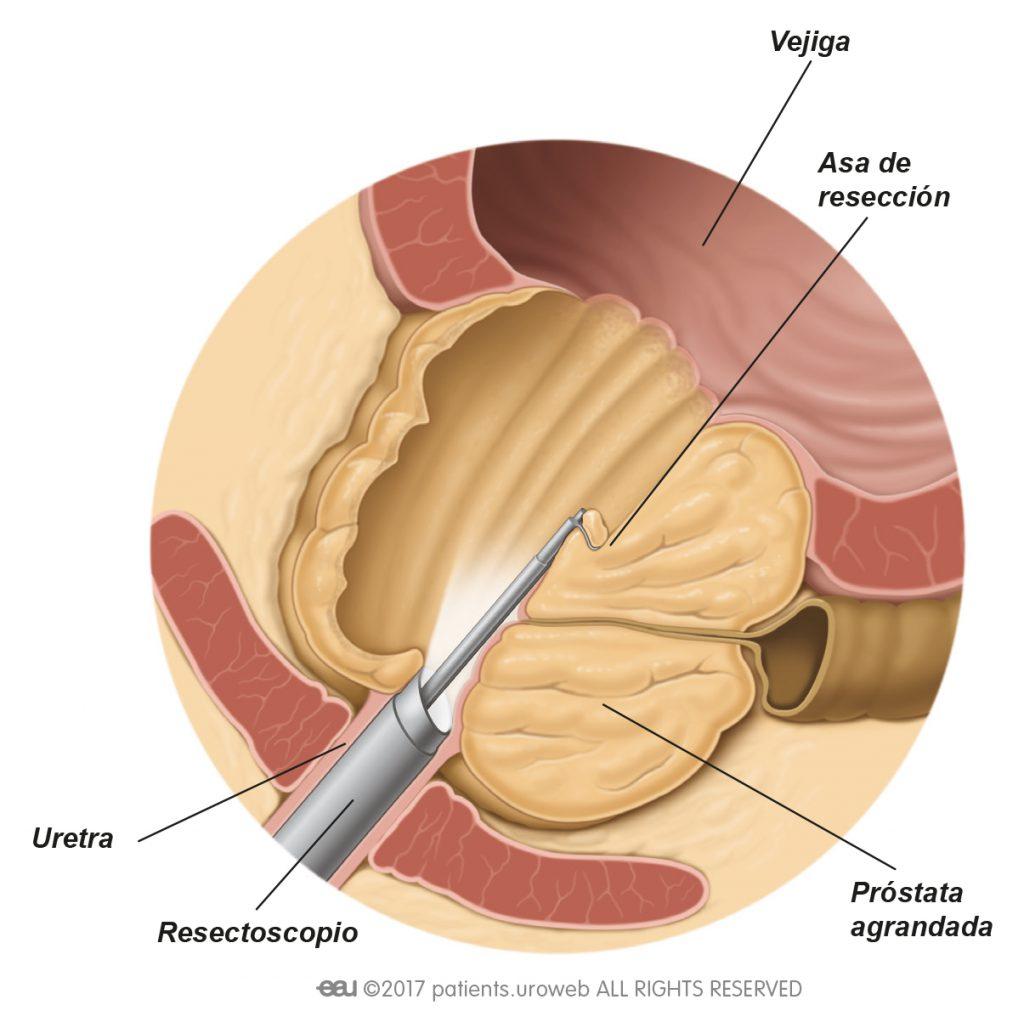 orgasmo masculino manual después de la radiación de próstata