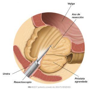 Fig. 2: Resectoscopio eliminando parte del tejido prostático durante una RTUP.