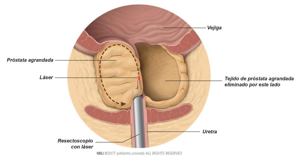 Fig. 2: Láser cortando y sacando parte del tejido prostático durante enucleación mediante láser.