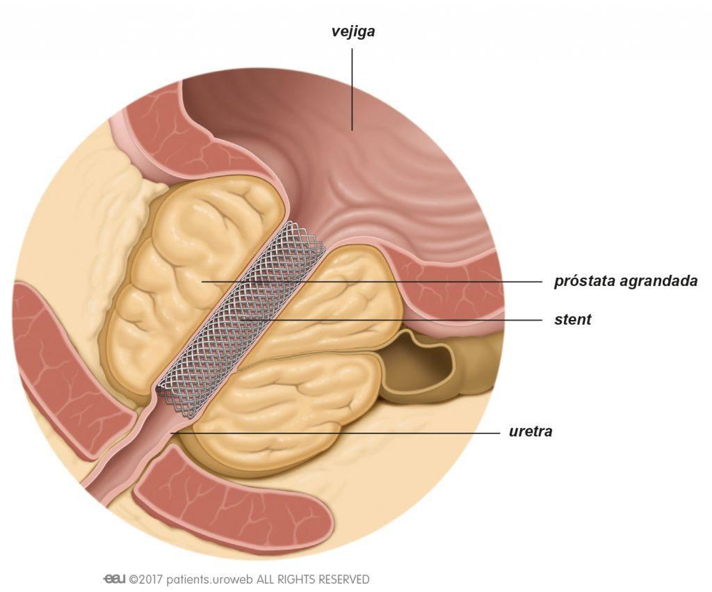prostata e incontinenza urinaria medici italia