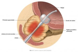 Fig. 1: El calor generado por la antena de microondas coagula parte de la próstata agrandada.