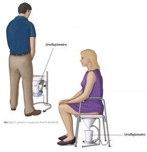 Fig. 1: Un tipo común de uroflujómetro para hombres y mujeres.