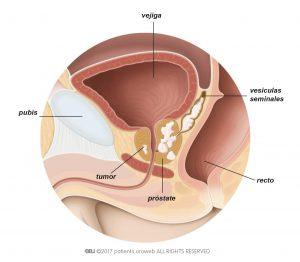 Fig. 1: Tumor de próstata T3 que se ha extendido hacia las vesículas seminales.