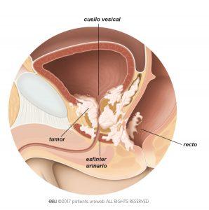 Fig. 2: Tumor de próstata T4 que se ha extendido hacia el cuello de la vejiga, el esfínter urinario y el recto.