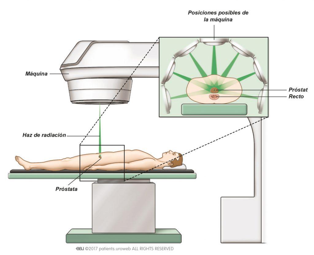 terapia de ondas de choque después de la radioterapia prostática
