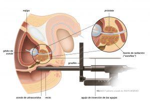 Fig. 2: En la braquiterapia una fuente de radiación se inserta directamente en la próstata.