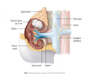 Fig. 1: Un tumor estadio I es un tumor de hasta 7 cm, limitado al riñón.