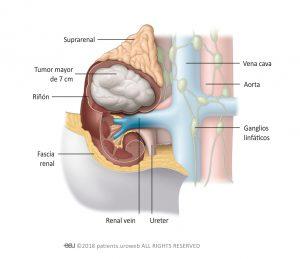 Fig. 2: Tumores estadio II están limitados al riñón, pero son mayores de 7 cm.