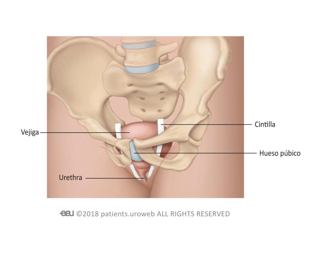Fig. 1a: Cintilla retropúbica en la mujer.