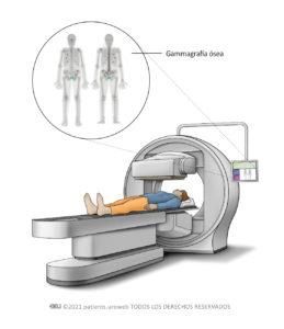 Una gammagrafía ósea
