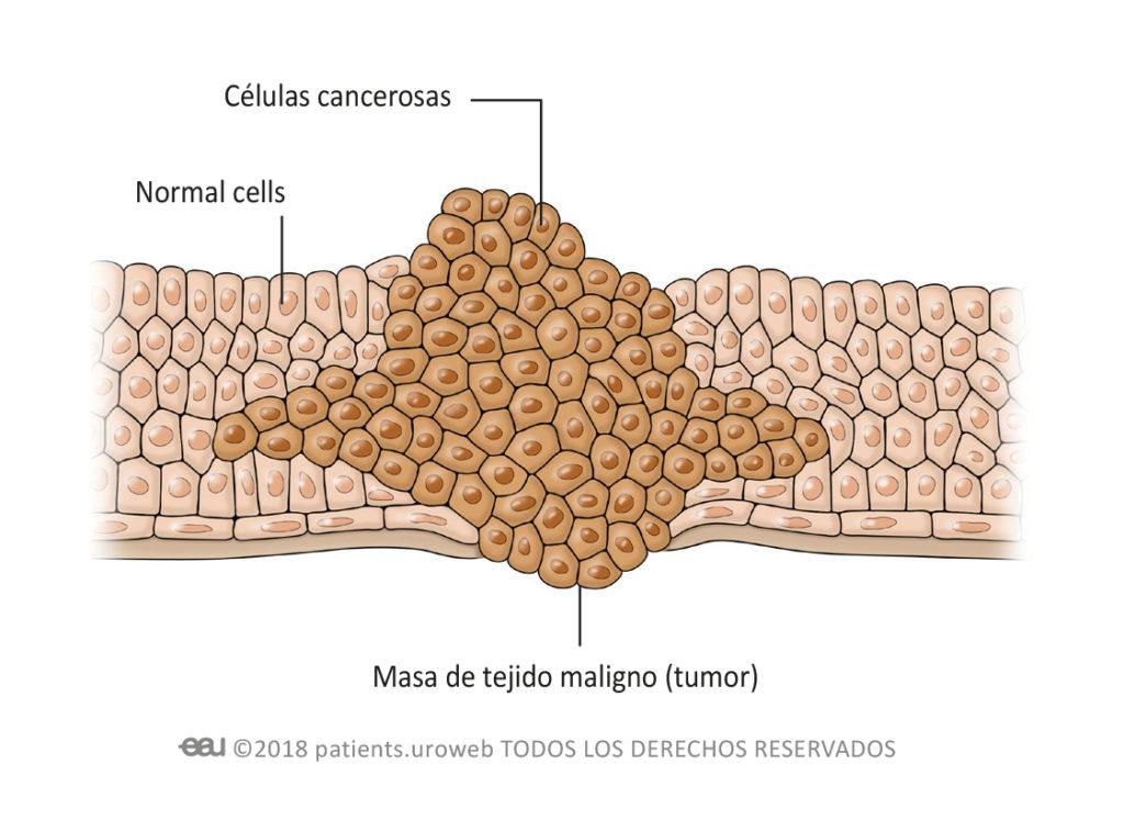 enlarged prostate and fertility A prosztatitis NSAID- k kezelése
