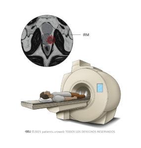 Una exploración por IRM