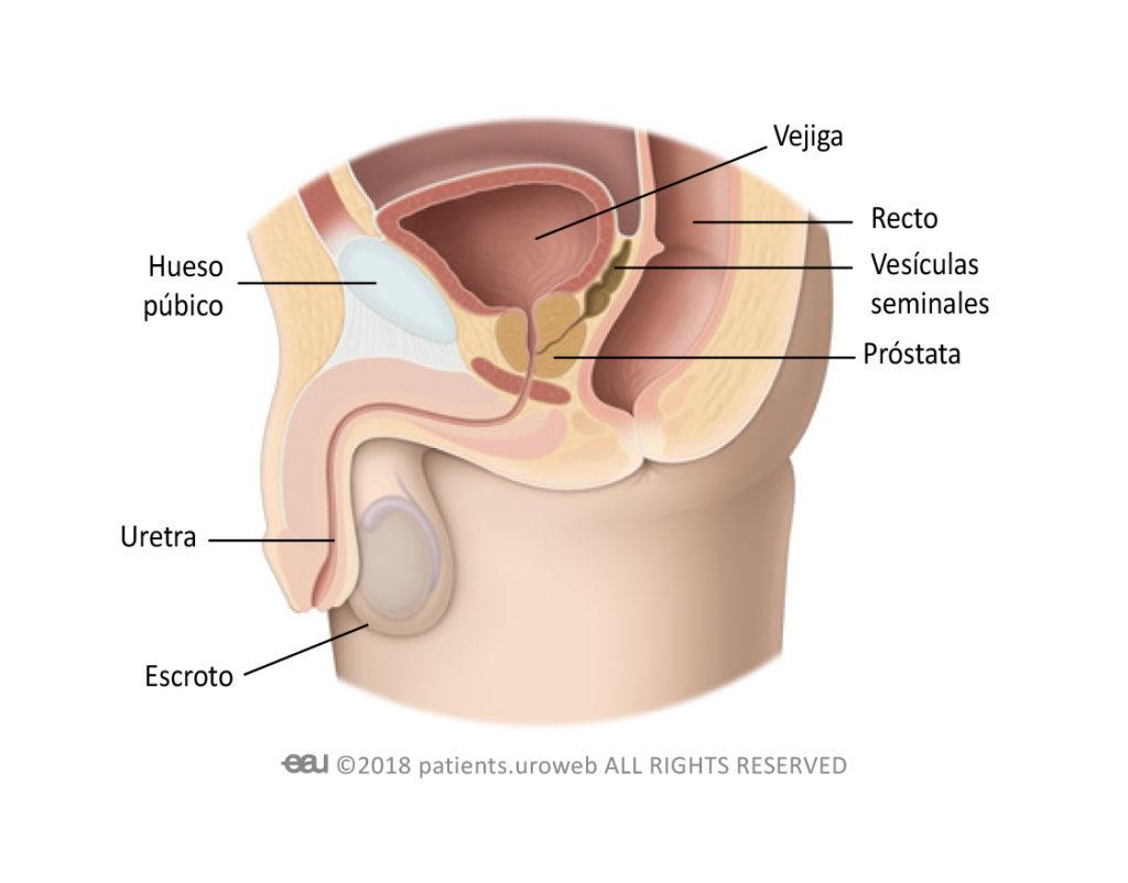 Túraműtét prosztatagyulladás miatt. • prosztata adenoma transzuretrális elektroreakciója (turné)