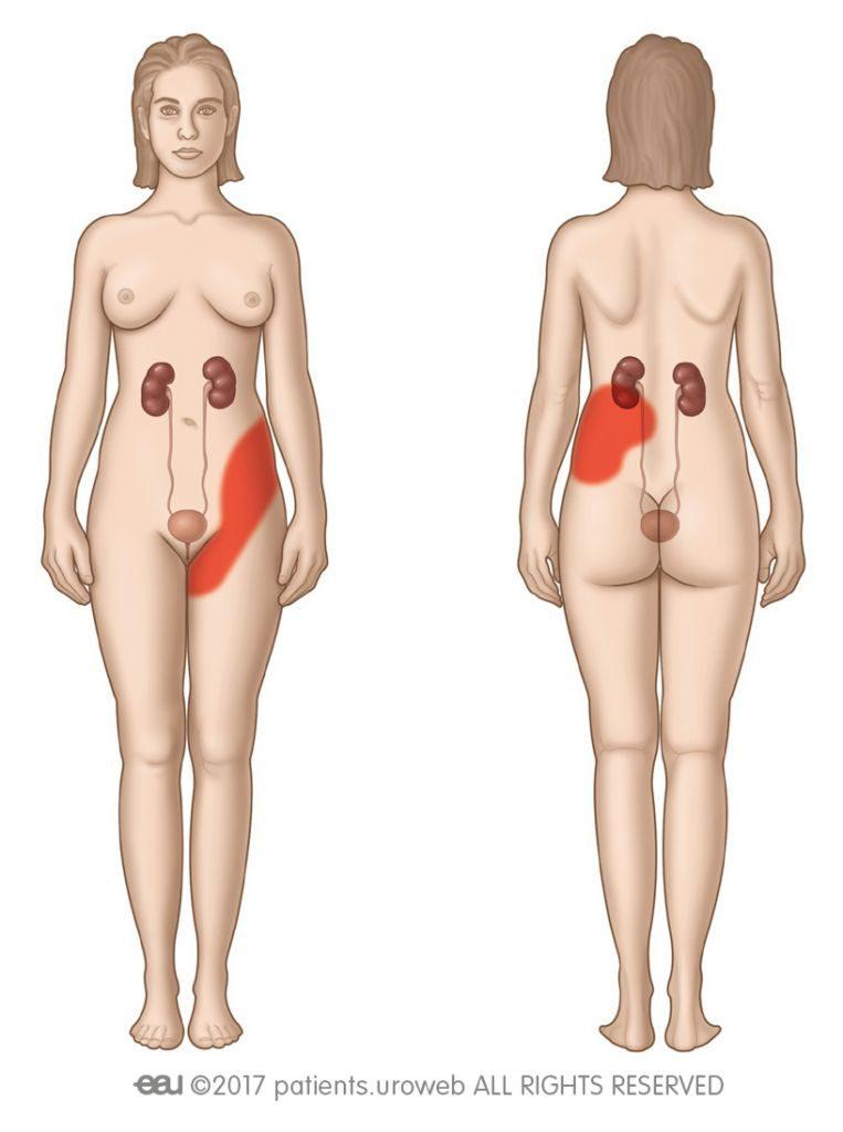 Εικ. 2: Περιοχή πιθανού πόνου κωλικού νεφρού.