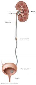 Εικ. 1: Ένα pig-tail (JJ-stent) εισάγετε για να εξασφαλιστεί η ροή των ούρων μέσω της ουροφόρου οδού.