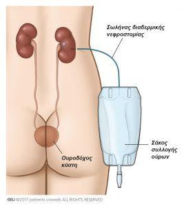 Εικ. 2a: Ένας σωλήνας διαδερμικής νεφροστομίας χρησιμοποιείται για να παροχετεύσει τα ούρα κατευθείαν από το νεφρό στο σάκο συλλογής των ούρων.