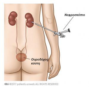 Εικ. 1a: Το νεφροσκόπιο χρησιμοποιείται για την αφαίρεση λίθων απευθείας από τους νεφρούς.