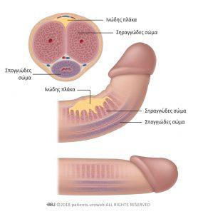 Εικόνα 1: Νόσος Peyronie.
