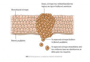 Εικόνα 2. Τα καρκινικά κύτταρα μπορούν να εξαπλωθούν σε άλλα μέρη του σώματος και να δημιουργήσουν μεταστατικούς όγκους.