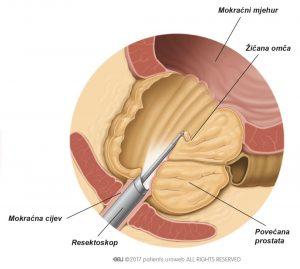 Slika 2: Resektoskopom se uklanjaju komadići tkiva prostate tijekom TURP-a.