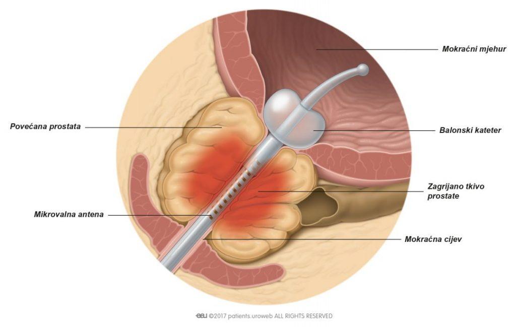 Slika 1: Toplina koju stvara mikrovalna antena koagulira dijelove povećane prostate.