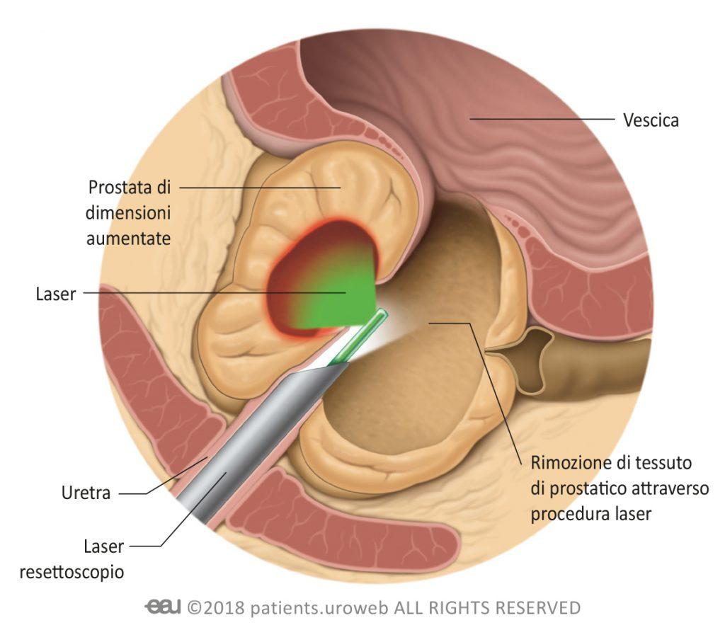 la prostata puó ritornare piccola del