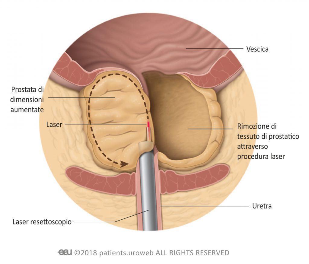 prostata operazione con laser treatment
