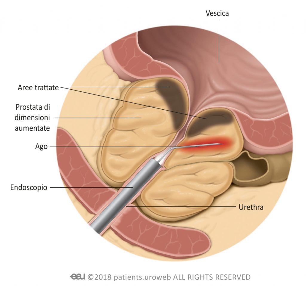 come si effettua l operazione alla prostata