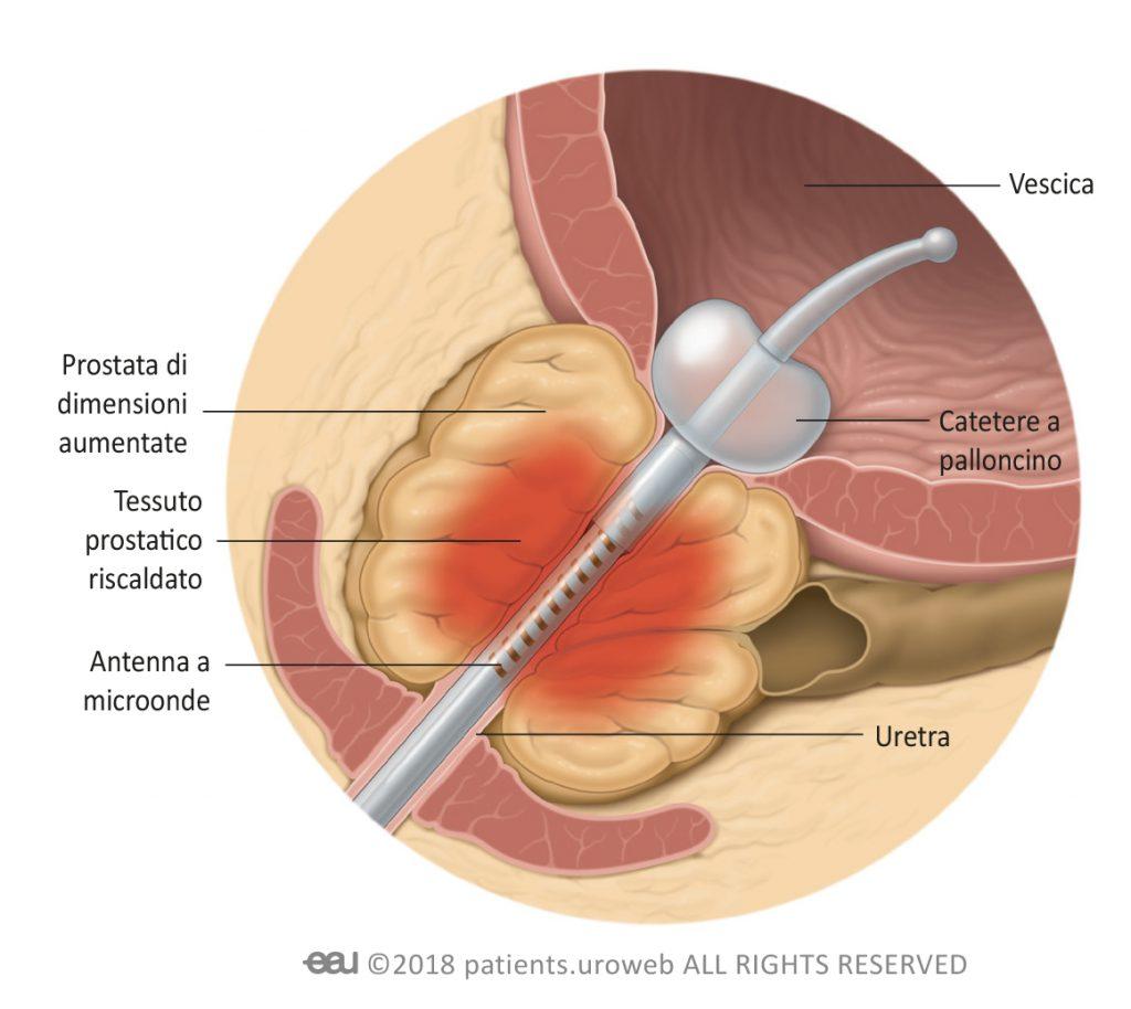 prostata ingrossata catetere)