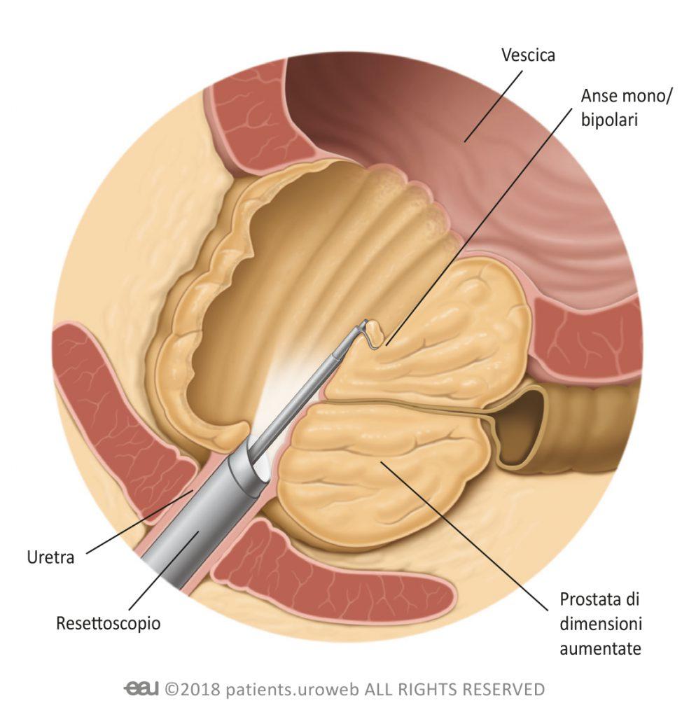 procedura di resezione della prostata