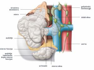 2. att. IV stadija: audzējs ir izplatījies ārpus nieres, ārpus nieres fascijas, un ir skāris virsnieru dziedzeri. Dažkārt šajā stadijā ir palielināts viens vai vairāki limfmezgli.