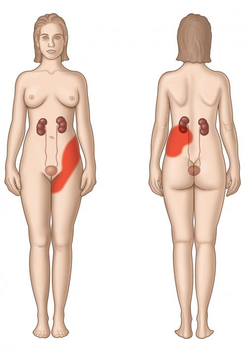Att. 2. Zona, kurā iespējamas nieru koliku sāpes.